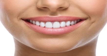 Πως μπορούμε να επιτύχουμε το τέλειο χαμόγελο;
