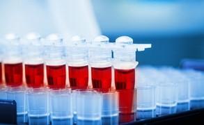 Ομάδα αίματος: Τι δείχνει για την υγεία μας