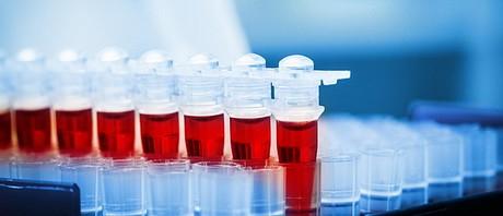 blood-sample