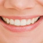 Πως να φροντίσουμε τα οδοντικά εμφυτεύματα;
