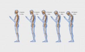 Το καινούριο σύνδρομο της εποχής μας ονομάζεται «Text neck»